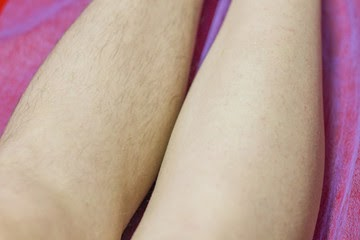 Hair removal procedure with sugar paste